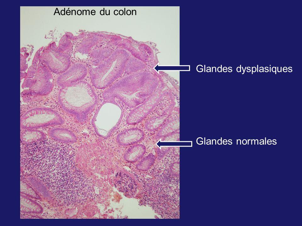 Glandes dysplasiques Glandes normales Adénome du colon