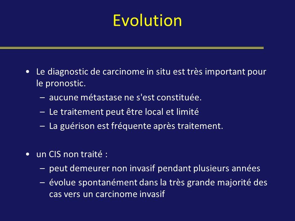 Evolution Le diagnostic de carcinome in situ est très important pour le pronostic. –aucune métastase ne s'est constituée. –Le traitement peut être loc