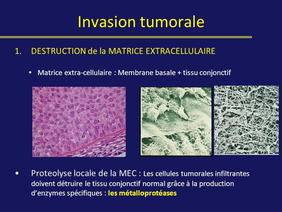 Invasion tumorale 1.DESTRUCTION de la MATRICE EXTRACELLULAIRE Matrice extra-cellulaire : Membrane basale + tissu conjonctif Proteolyse locale de la ME
