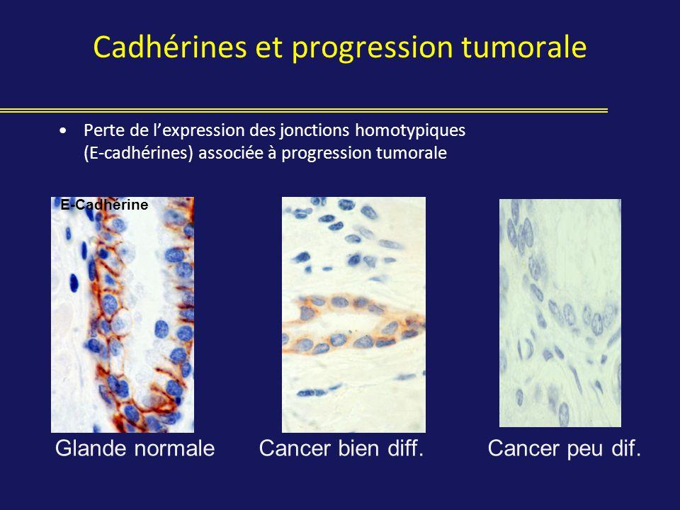 Cadhérines et progression tumorale Perte de lexpression des jonctions homotypiques (E-cadhérines) associée à progression tumorale Glande normaleCancer