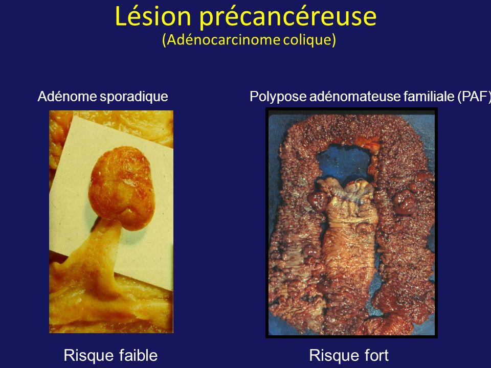 Lésion précancéreuse (Adénocarcinome colique) Adénome sporadique Polypose adénomateuse familiale (PAF) Risque faibleRisque fort