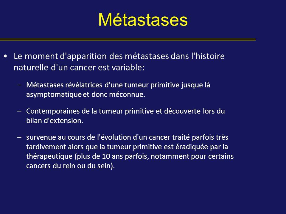 Le moment d'apparition des métastases dans l'histoire naturelle d'un cancer est variable: –Métastases révélatrices d'une tumeur primitive jusque là as