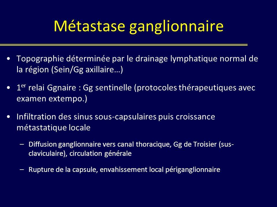 Métastase ganglionnaire Topographie déterminée par le drainage lymphatique normal de la région (Sein/Gg axillaire…) 1 er relai Ggnaire : Gg sentinelle