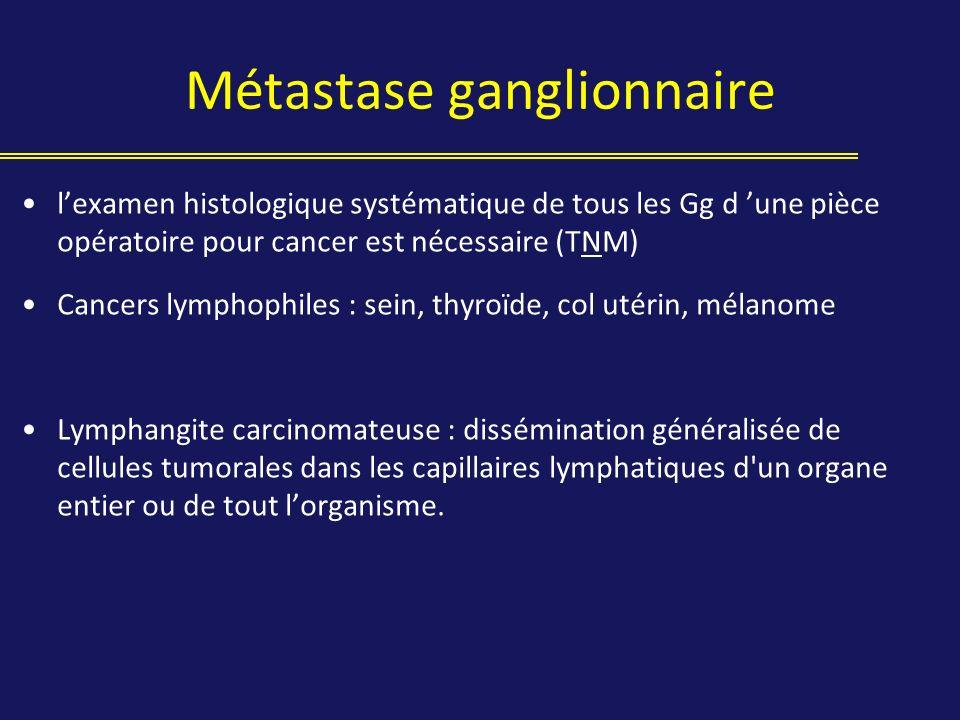 lexamen histologique systématique de tous les Gg d une pièce opératoire pour cancer est nécessaire (TNM) Cancers lymphophiles : sein, thyroïde, col ut