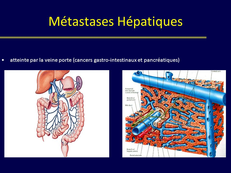 Métastases Hépatiques atteinte par la veine porte (cancers gastro-intestinaux et pancréatiques)
