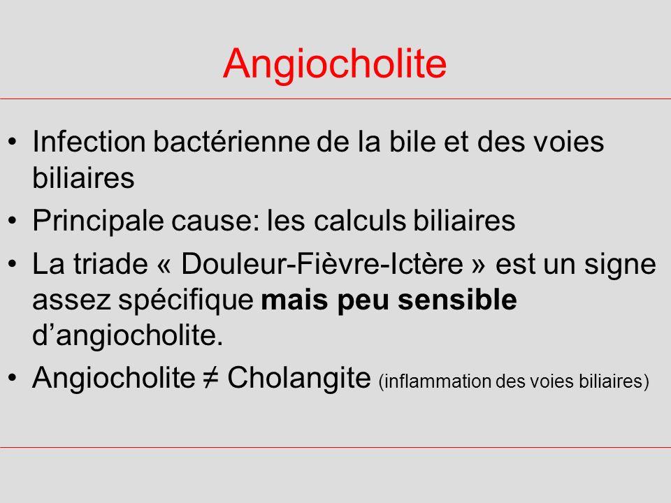 Angiocholite Infection bactérienne de la bile et des voies biliaires Principale cause: les calculs biliaires La triade « Douleur-Fièvre-Ictère » est u