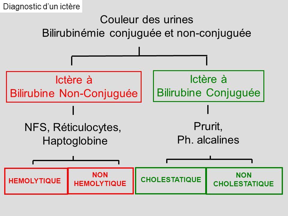 Diagnostic dun ictère Couleur des urines Bilirubinémie conjuguée et non-conjuguée NFS, Réticulocytes, Haptoglobine Prurit, Ph. alcalines Ictère à Bili
