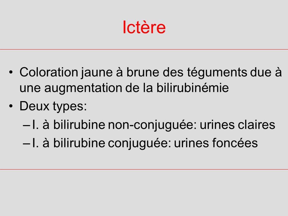 Causes dIctère à bilirubine non conjuguée HEMOLYTIQUE (cf.