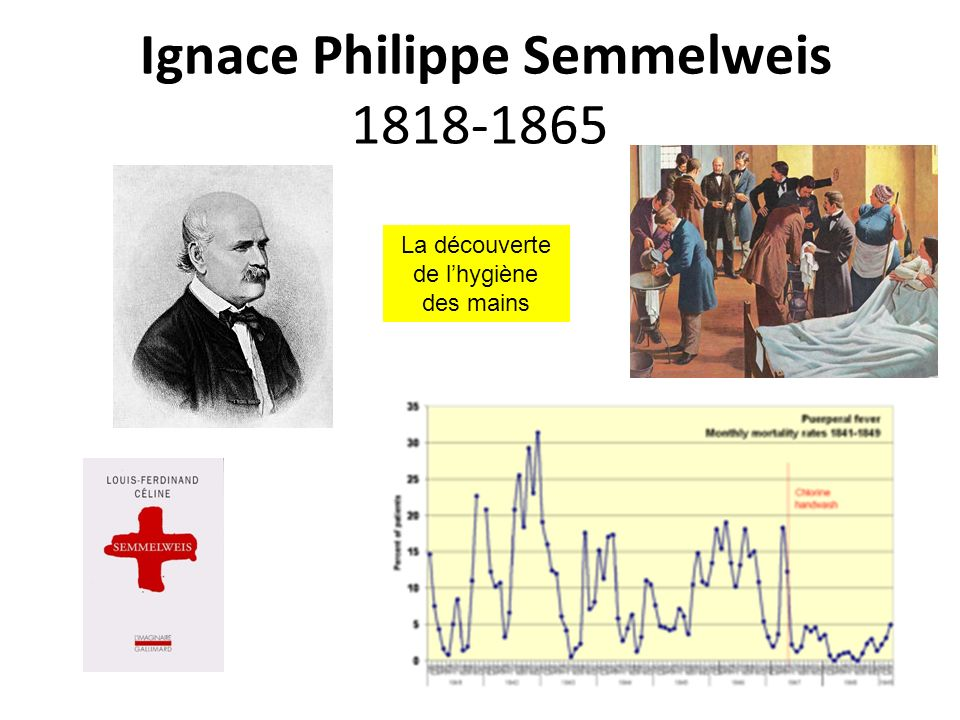 Ignace Philippe Semmelweis 1818-1865 La découverte de lhygiène des mains
