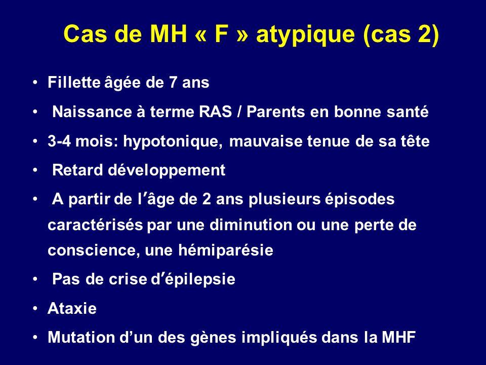 Cas de MH « F » atypique (cas 2) Fillette âgée de 7 ans Naissance à terme RAS / Parents en bonne santé 3-4 mois: hypotonique, mauvaise tenue de sa têt
