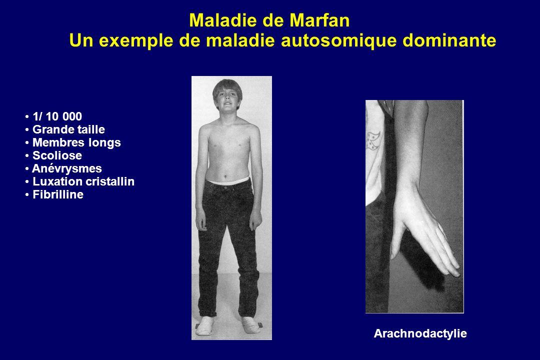 Maladie de Marfan Un exemple de maladie autosomique dominante Arachnodactylie 1/ 10 000 Grande taille Membres longs Scoliose Anévrysmes Luxation cristallin Fibrilline