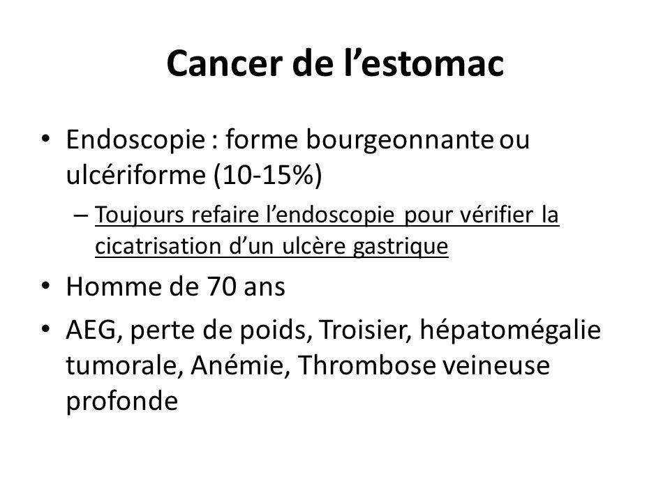 Cancer de lestomac Endoscopie : forme bourgeonnante ou ulcériforme (10-15%) – Toujours refaire lendoscopie pour vérifier la cicatrisation dun ulcère g