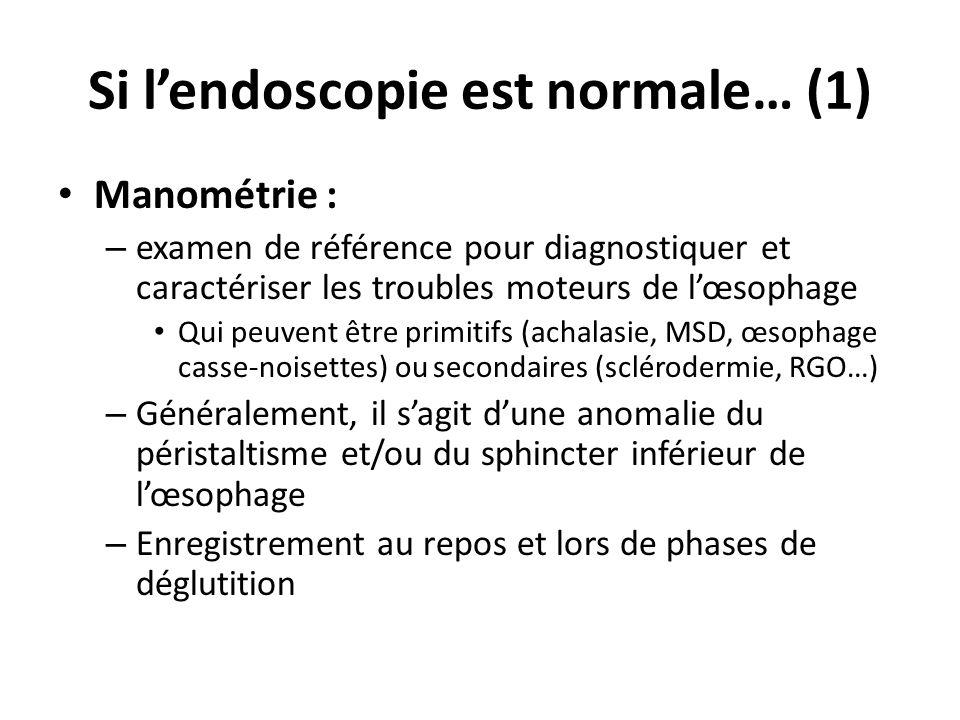 Si lendoscopie est normale… (2) pH-métrie des 24H – Indication : symptômes atypiques pouvant évoquer un reflux lorsque lendoscopie nest pas contributive – Electrode placée 5 cm au dessus du SIO – Normal : pH œsophage inf.