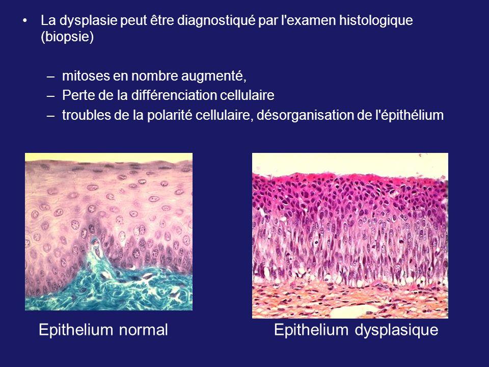 La dysplasie peut être diagnostiqué par l'examen histologique (biopsie) –mitoses en nombre augmenté, –Perte de la différenciation cellulaire –troubles