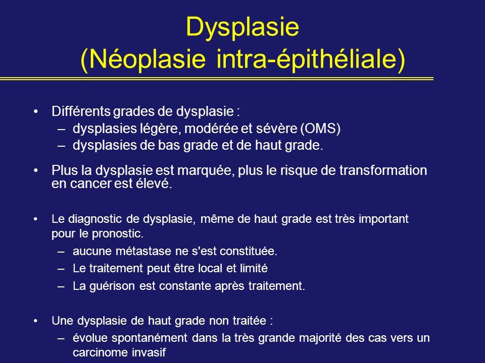 Dysplasie (Néoplasie intra-épithéliale) Différents grades de dysplasie : –dysplasies légère, modérée et sévère (OMS) –dysplasies de bas grade et de ha