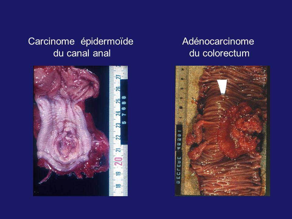 Carcinome épidermoïde du canal anal Adénocarcinome du colorectum