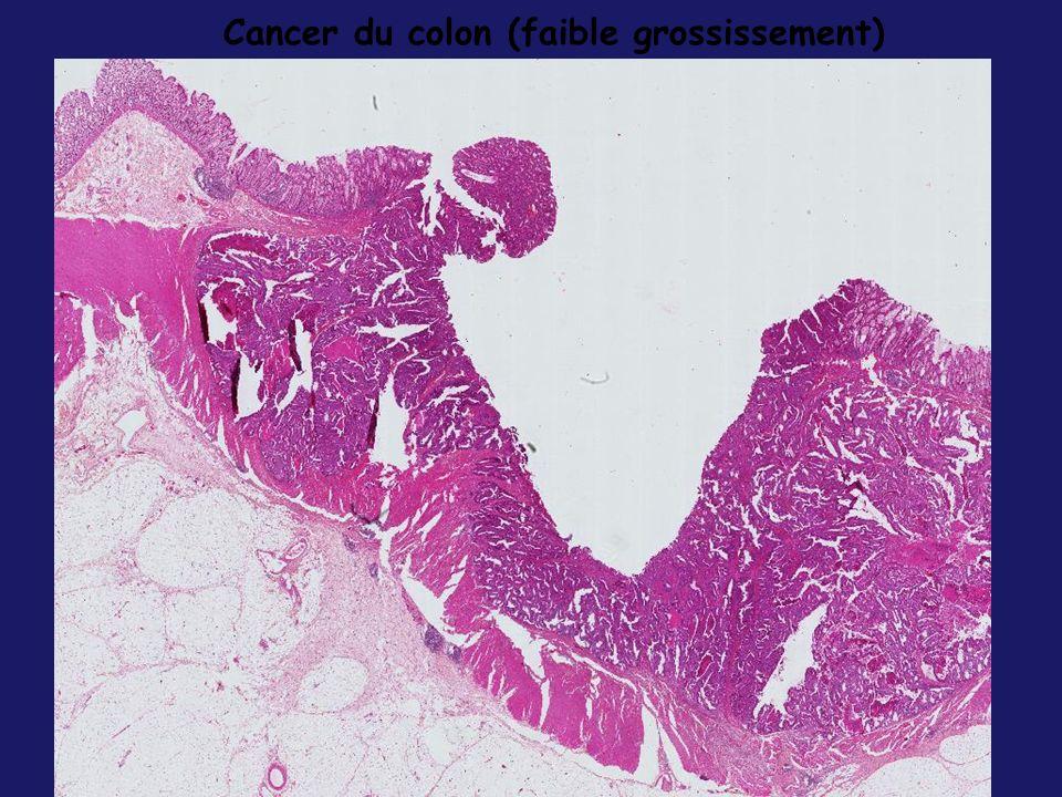 Cancer du colon (faible grossissement)