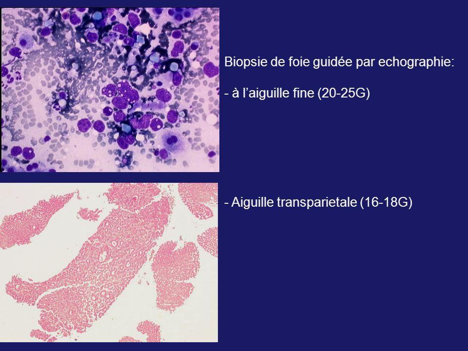 Biopsie de foie guidée par echographie: - à laiguille fine (20-25G) - Aiguille transparietale (16-18G)