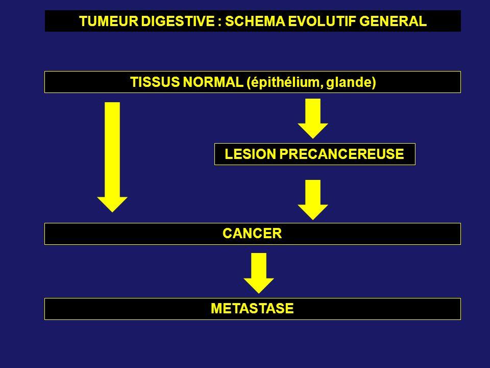TUMEUR DIGESTIVE : SCHEMA EVOLUTIF GENERAL TISSUS NORMAL (épithélium, glande) LESION PRECANCEREUSE CANCER METASTASE