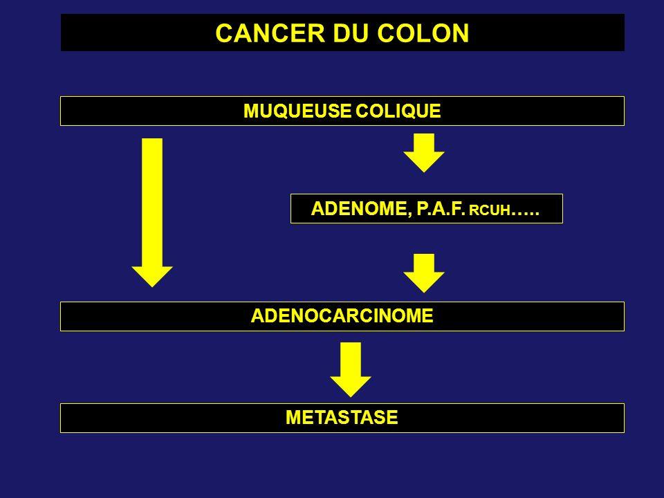 CANCER DU COLON MUQUEUSE COLIQUE ADENOME, P.A.F. RCUH ….. ADENOCARCINOME METASTASE