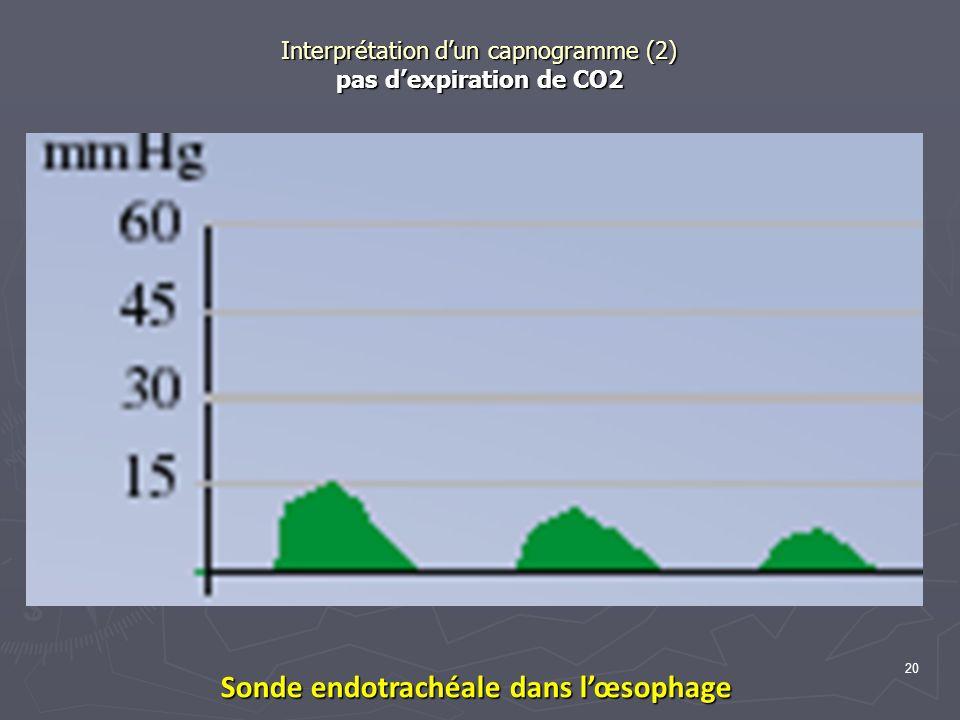 Interprétation dun capnogramme (2) pas dexpiration de CO2 Sonde endotrachéale dans lœsophage 20