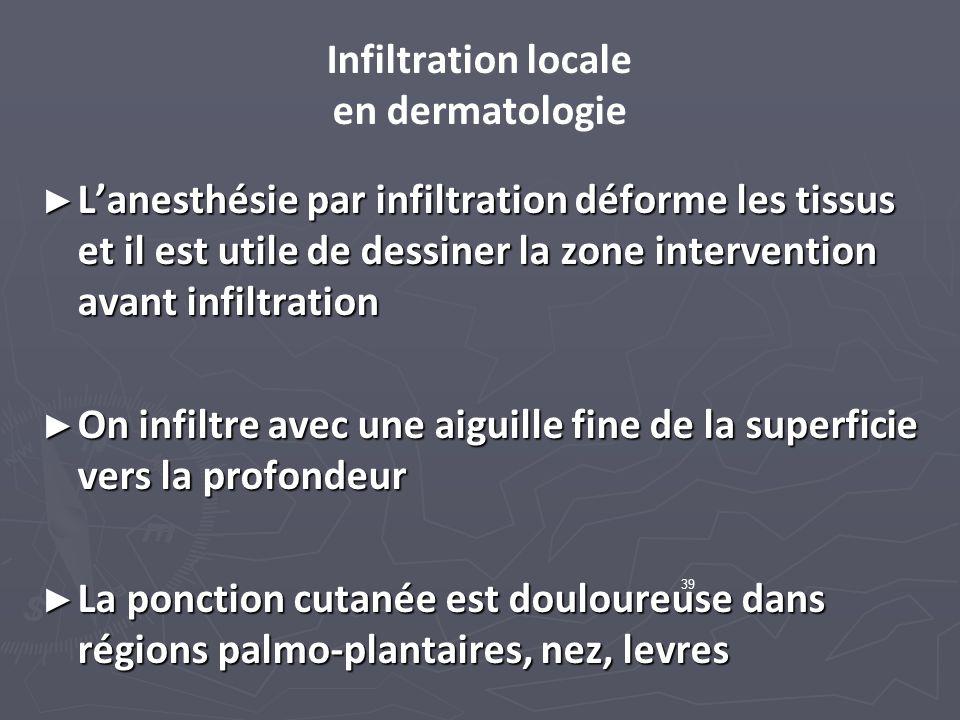 Infiltration locale en dermatologie Lanesthésie par infiltration déforme les tissus et il est utile de dessiner la zone intervention avant infiltratio