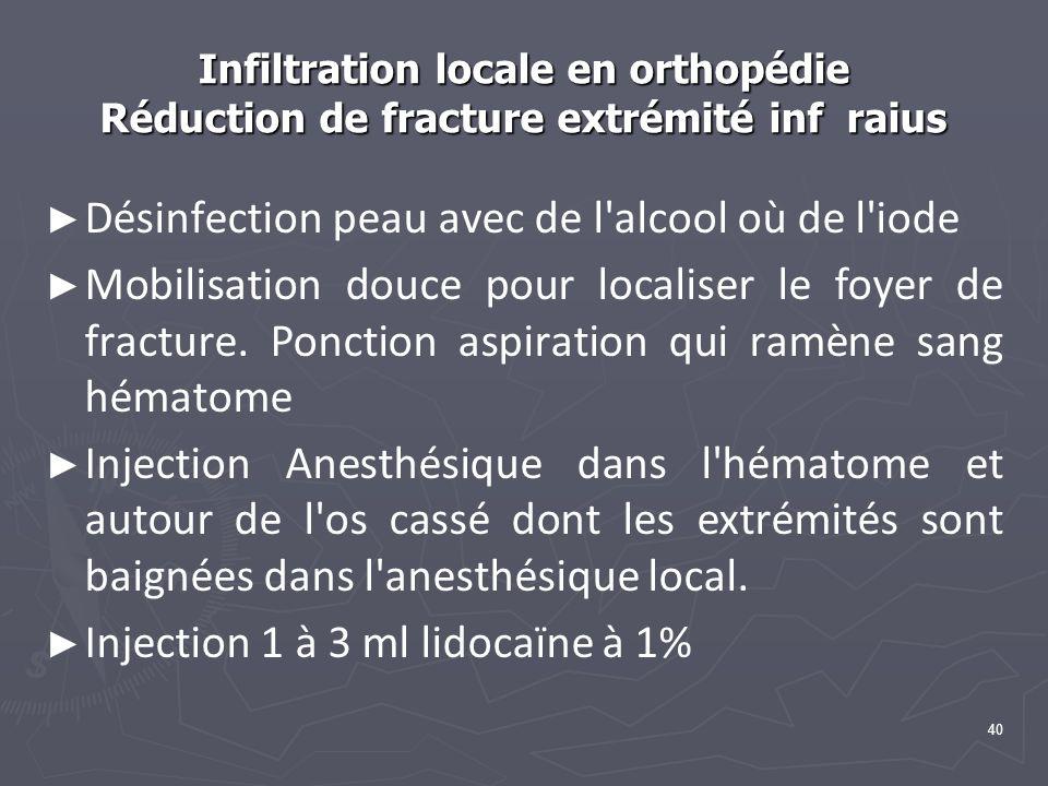 Infiltration locale en orthopédie Réduction de fracture extrémité inf raius Désinfection peau avec de l alcool où de l iode Mobilisation douce pour localiser le foyer de fracture.