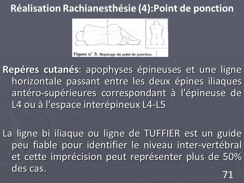 71 Réalisation Rachianesthésie (4):Point de ponction Repéres cutanés: apophyses épineuses et une ligne horizontale passant entre les deux épines iliaques antéro-supérieures correspondant à l épineuse de L4 ou à l espace interépineux L4-L5 La ligne bi iliaque ou ligne de TUFFIER est un guide peu fiable pour identifier le niveau inter-vertébral et cette imprécision peut représenter plus de 50% des cas.