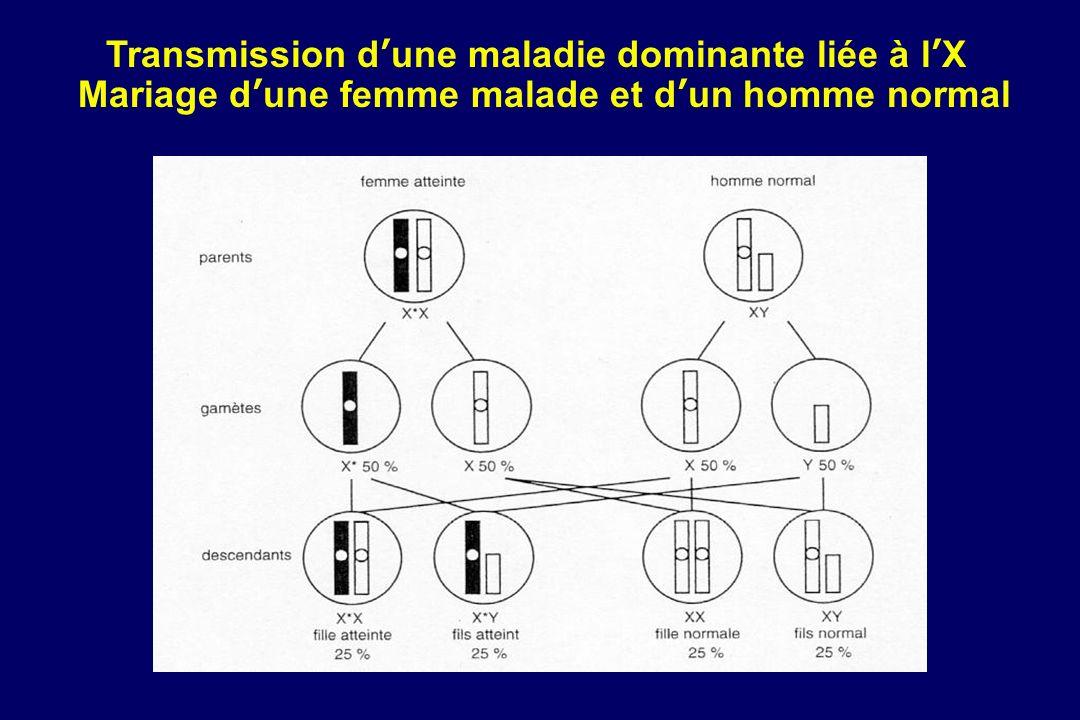 Transmission dune maladie dominante liée à lX Mariage dune femme malade et dun homme normal