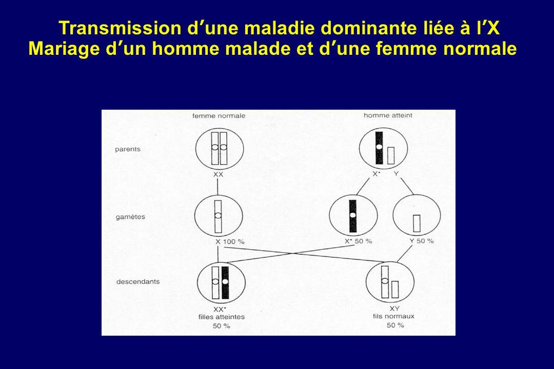 Transmission dune maladie dominante liée à lX Mariage dun homme malade et dune femme normale