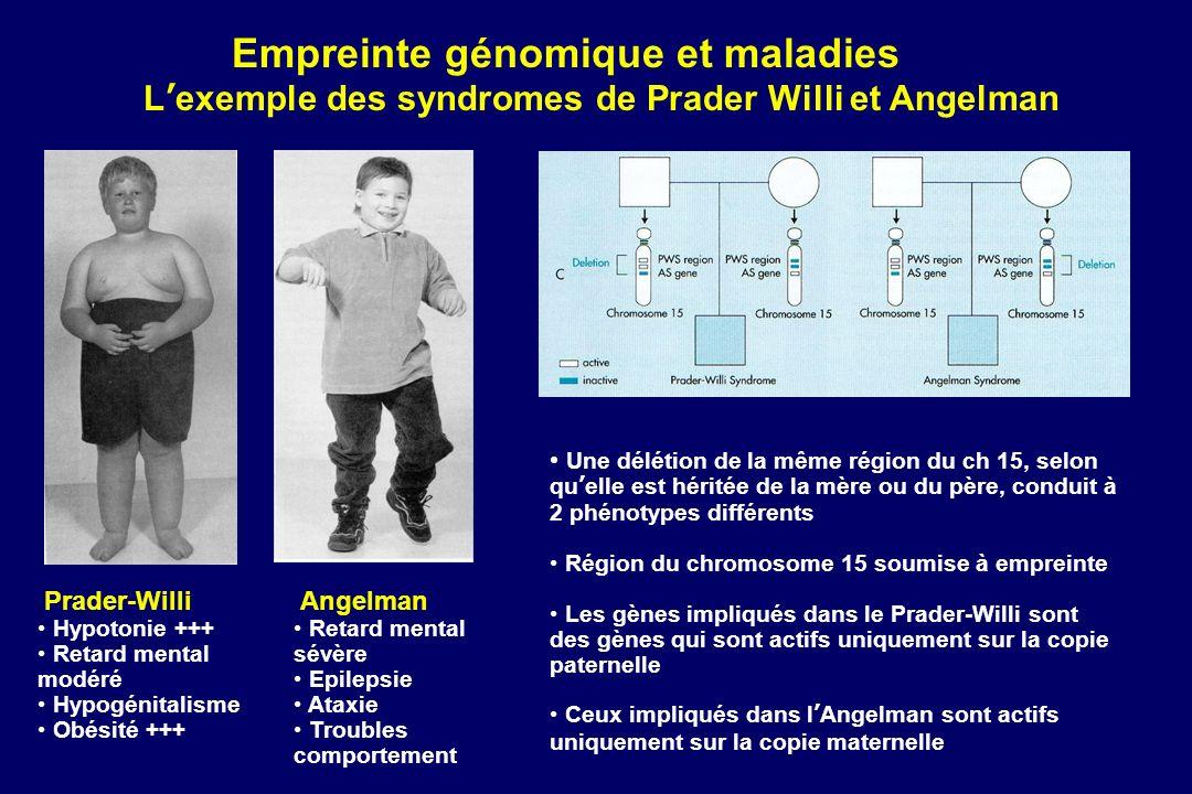Empreinte génomique et maladies Lexemple des syndromes de Prader Willi et Angelman Prader-Willi Hypotonie +++ Retard mental modéré Hypogénitalisme Obé