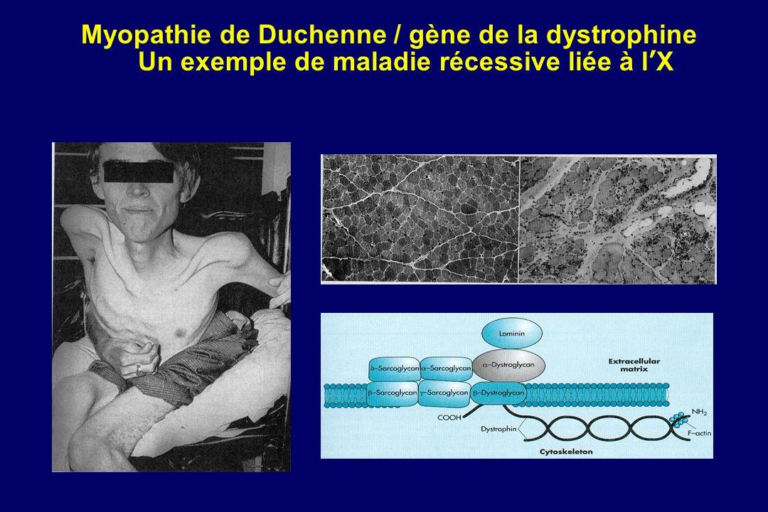 Myopathie de Duchenne / gène de la dystrophine Un exemple de maladie récessive liée à lX