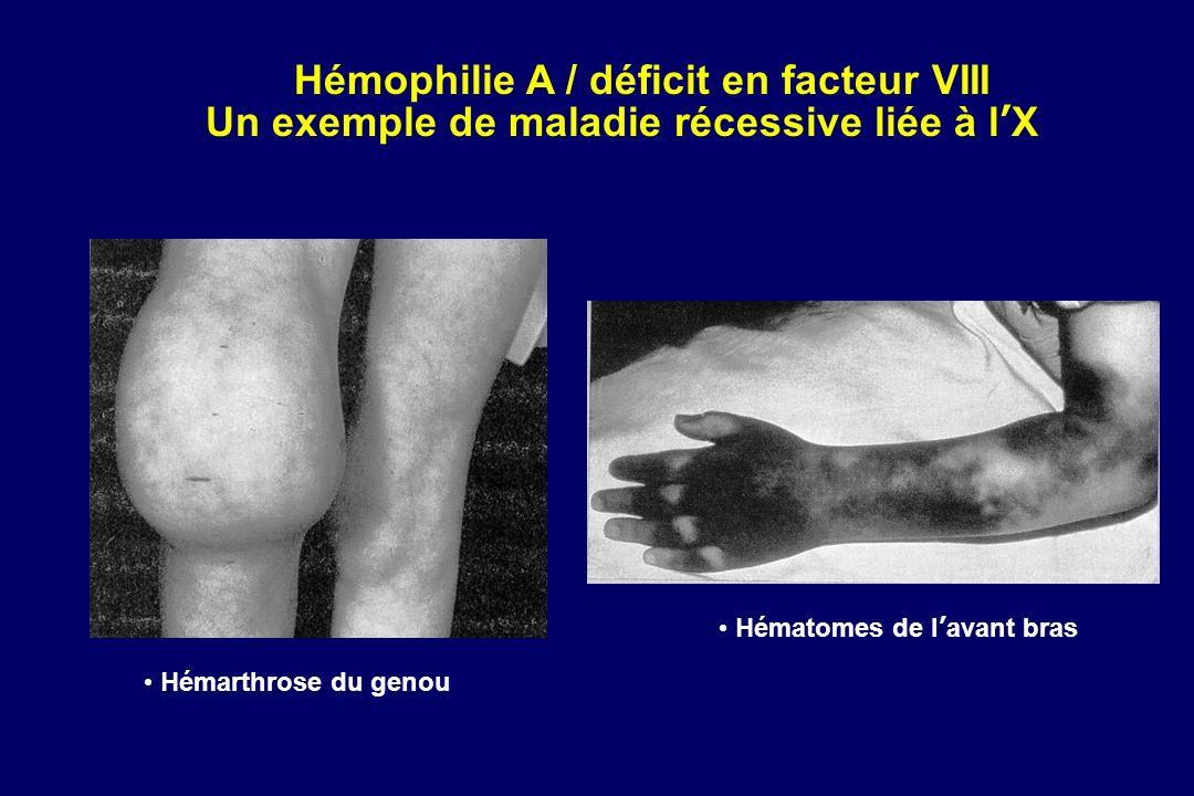 Hémophilie A / déficit en facteur VIII Un exemple de maladie récessive liée à lX Hémarthrose du genou Hématomes de lavant bras