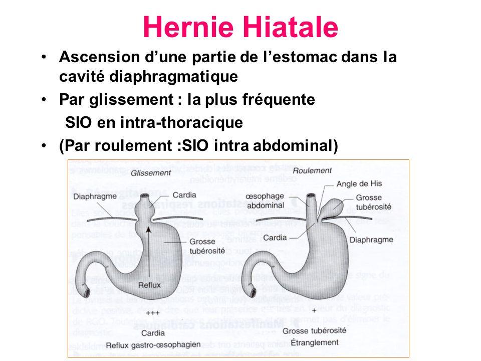 Hernie Hiatale Ascension dune partie de lestomac dans la cavité diaphragmatique Par glissement : la plus fréquente SIO en intra-thoracique (Par roulem