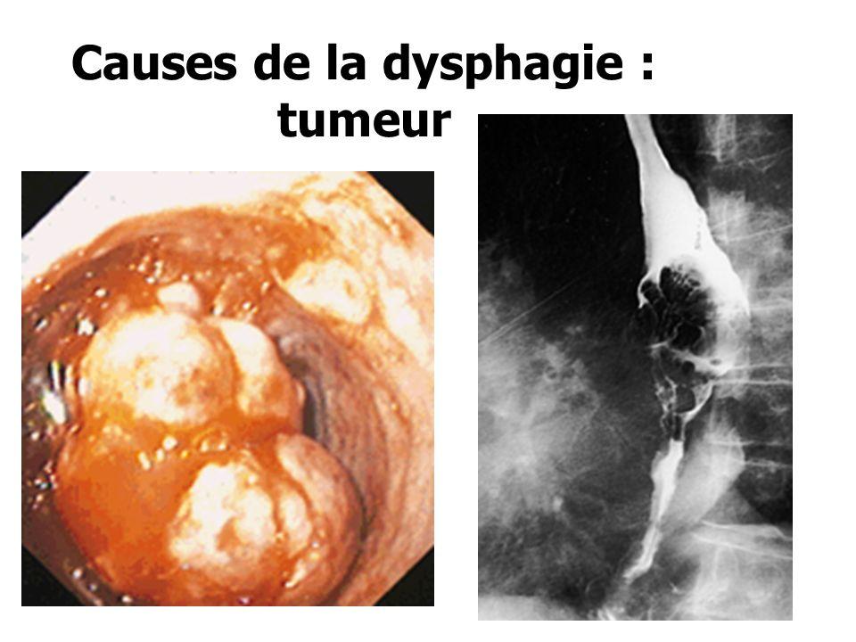 Conséquences du RGO : Oesophagite