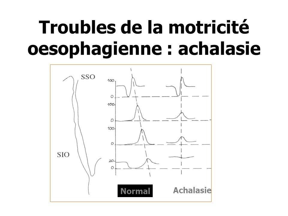 Troubles de la motricité oesophagienne : achalasie Normal Achalasie