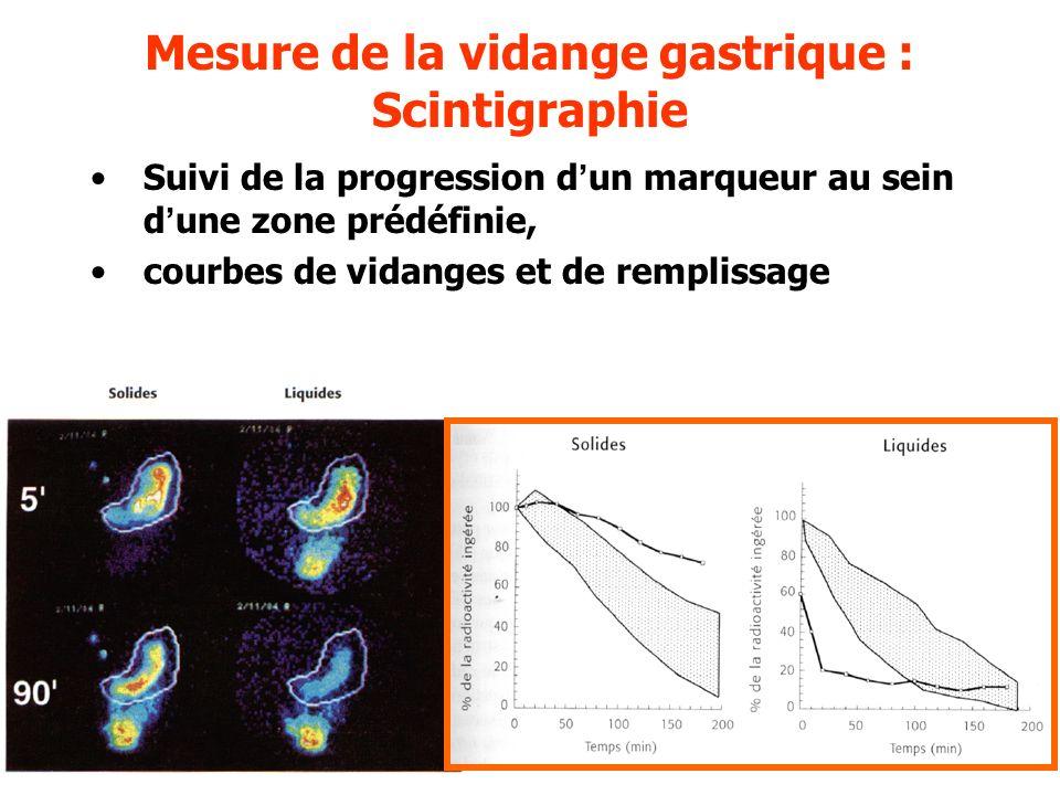 Mesure de la vidange gastrique : Scintigraphie Suivi de la progression dun marqueur au sein dune zone prédéfinie, courbes de vidanges et de remplissag