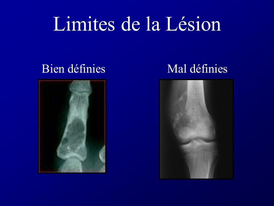 Densité de la Lésion Lacune lyse osseuse: perte dau moins 30% du calcium isolée (kyste, tumeur, ostéomyélite), multifocale (méta lytique, myélome), gé