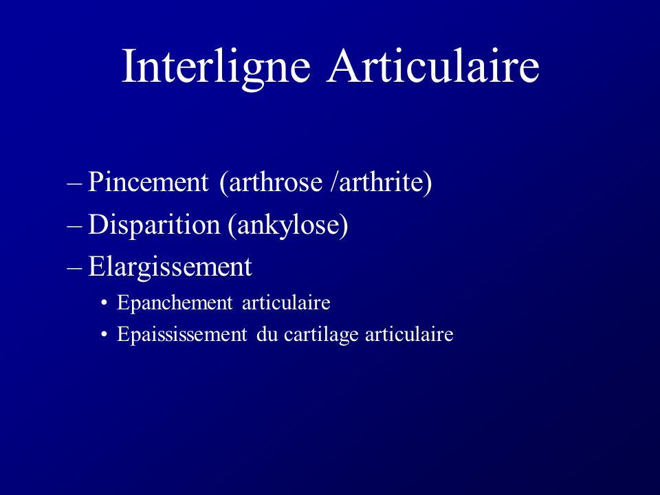 Sémiologie articulaire élémentaire Linterligne articulaire Surfaces articulaires Régulier Irrégulier Régions épiphysaires Déminéralisation Ostéoconden