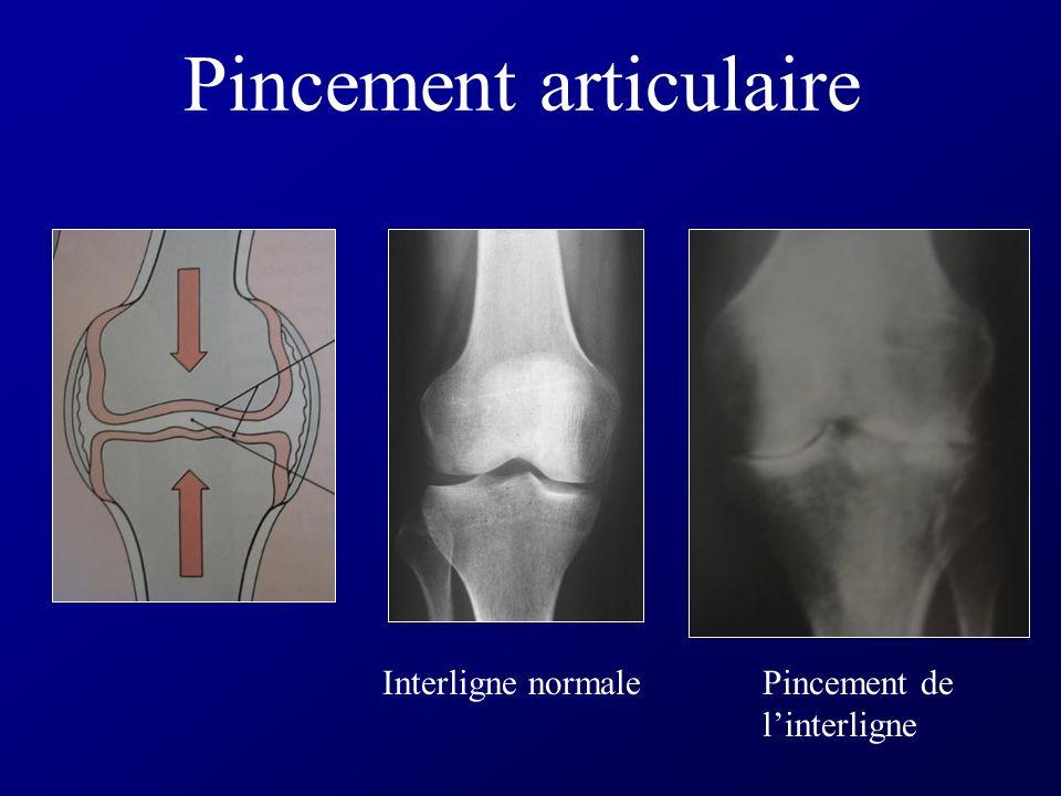 Interligne articulaire Hachurée : vue en radiologie standard (os : opaque aux rayons X) Flèche : interligne articulaire
