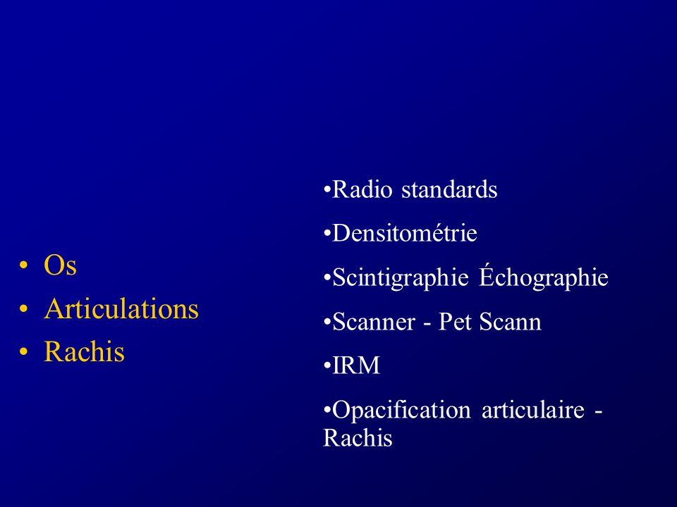 Os Articulations Rachis Radio standards Densitométrie Scintigraphie Échographie Scanner - Pet Scann IRM Opacification articulaire - Rachis