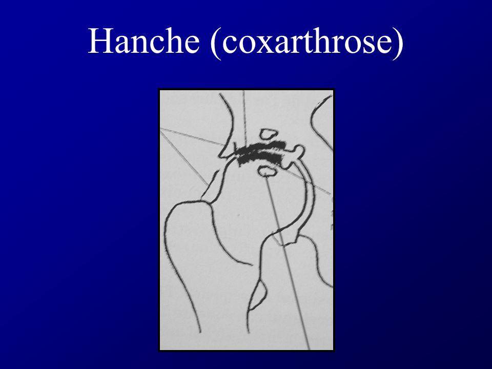 Cliché Schuss du Genou Face Face en flexion (dégage la partie postérieure des condyles où débute l arthrose)