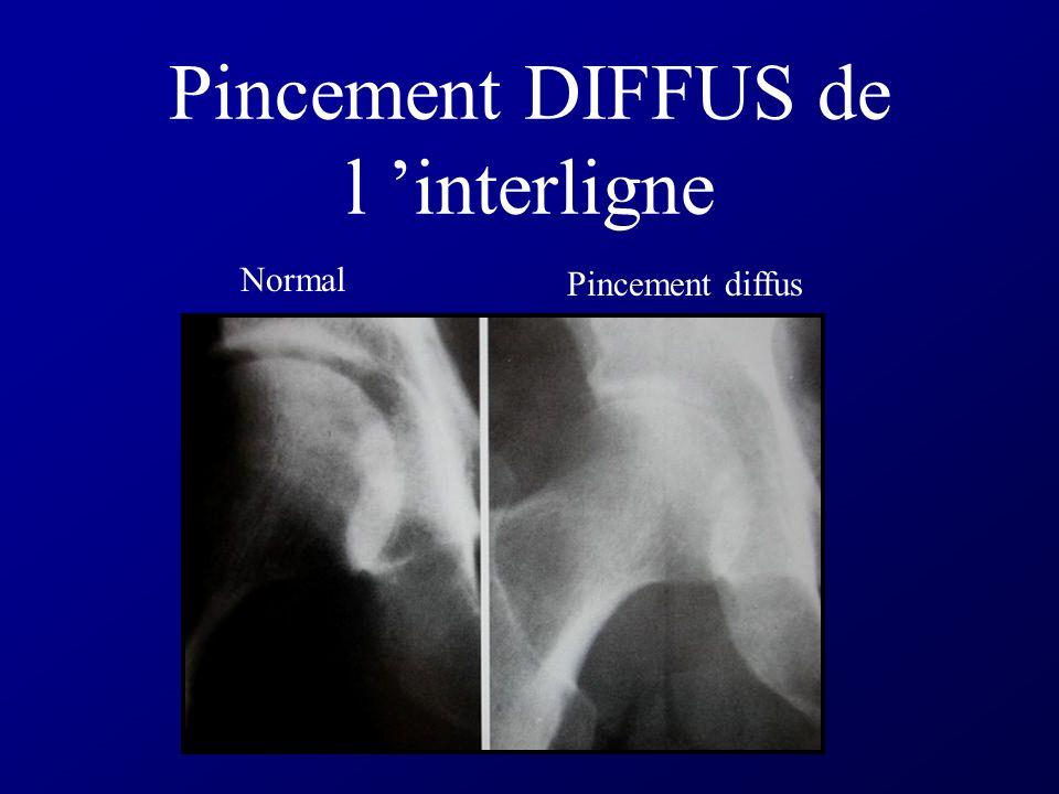 ARTHRITE 1 - Pincement de l interligne DIFFUS 3- Demineralisation sous chondrale 4- Pas d ostéophyte 5- Érosions marginales 6 - Déminéralisation 7 - G