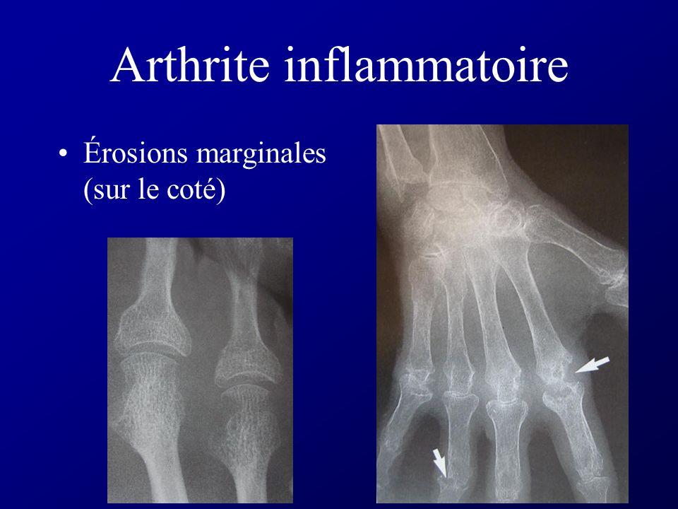 Arthrite inflammatoire Pincement articulaire diffus Pas d ostéophyte