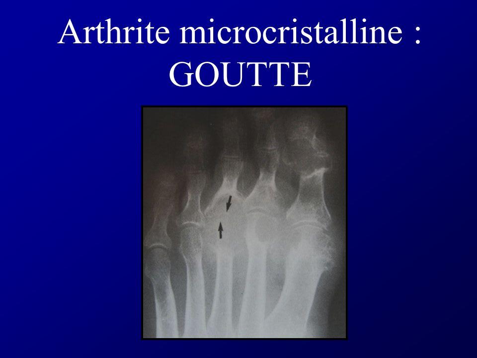 Arthrite inflammatoire Érosions marginales (sur le coté)