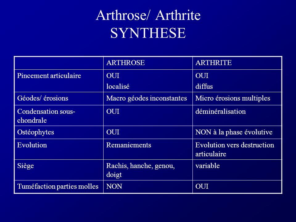 Arthrite Microcristalline : CHONDROCALCINOSE