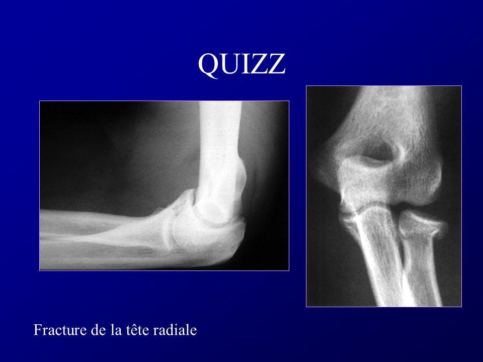 Semiologie Osseuse Ostéoblastes et Ostéoclastes + substance inter-cellulaire calcifiée Remaniement constant: Ostéoblaste > formation osseuse Ostéoclas