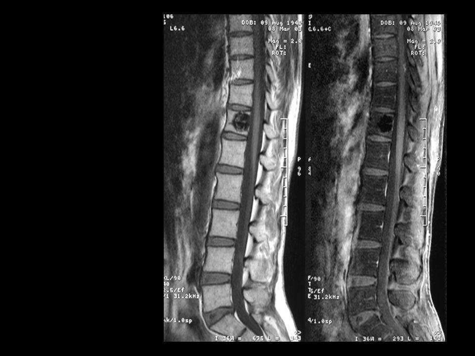 Techniques dexploration du rachis dorsal et du rachis lombaire Radiographie simple ++: troubles statiques, traumatologie, arthrose Scanner : os cortic