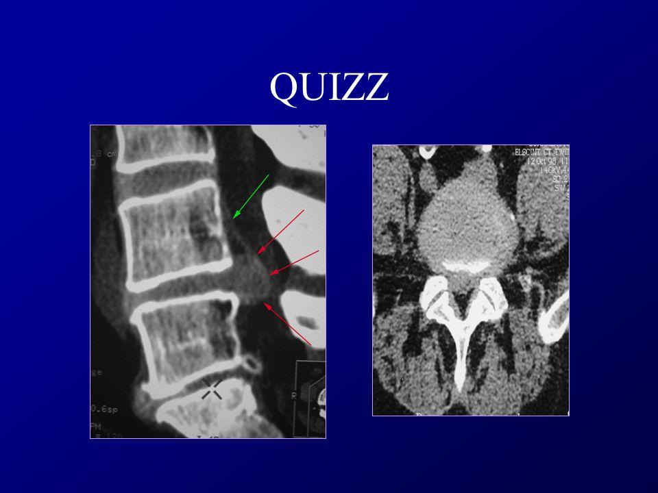 Phases cicatricielles - Infiltration Graisseuse - Fibrose
