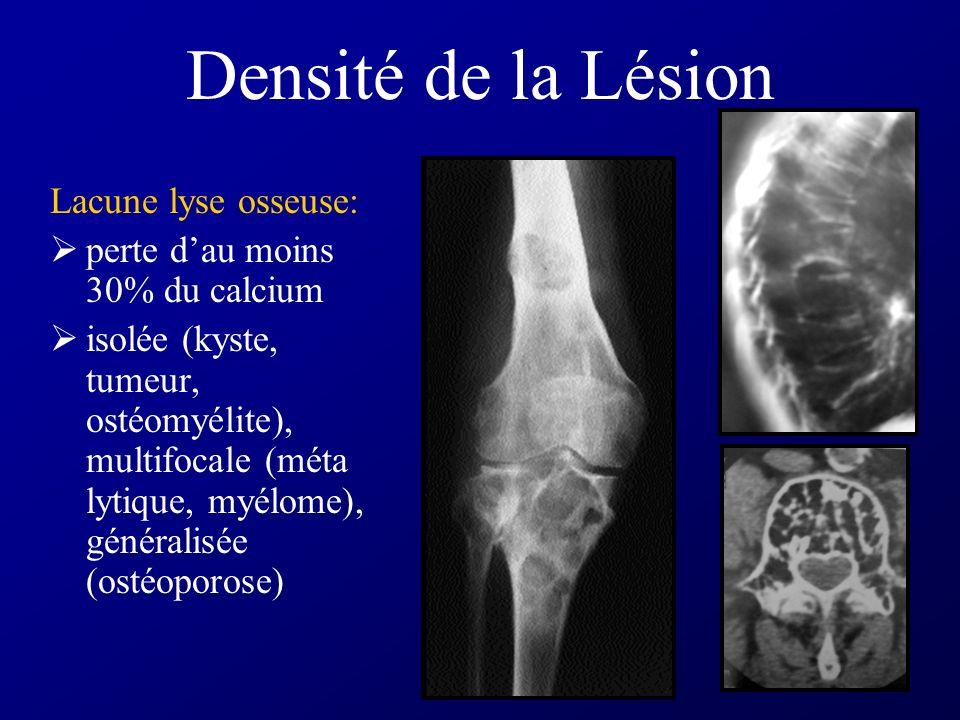 Densité de la Lésion Lacune lyse osseuse: perte dau moins 30% du calcium isolée (kyste, tumeur, ostéomyélite), multifocale (méta lytique, myélome), généralisée (ostéoporose)